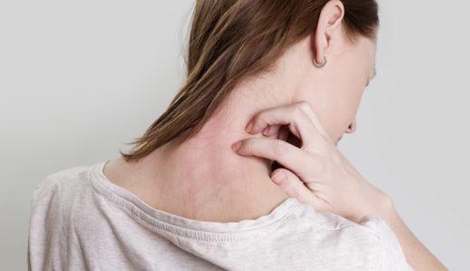 その皮膚トラブルカビが原因かも?症状に合わせた治療方法と増殖させない予防対策